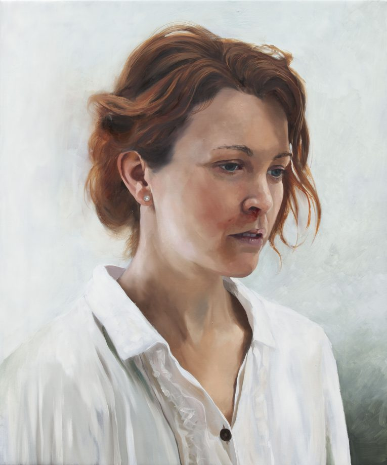 Girl with a nosebleed (version 3), 60x50cm, 2016, Markus Åkesson, oil on canvas